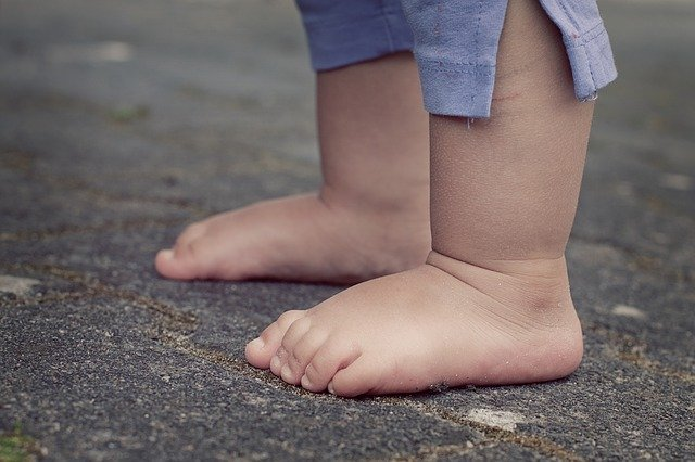 Enderezar las piernas arqueadas en bebés